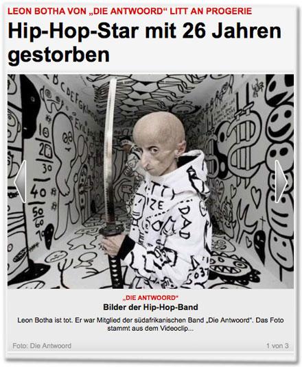 """Leon Botha von """"Die Antwoord"""" litt an Progerie: Hip-Hop-Star mit 26 Jahren gestorben. Leon Botha ist tot. Er war Mitglied der südafrikanischen Band """"Die Antwoord"""". Das Foto stammt aus dem Videoclip..."""