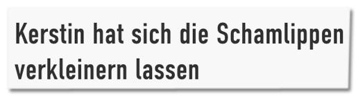 Screenshot jetzt.de - Kerstin hat sich die Schamlippen verkleinern lassen
