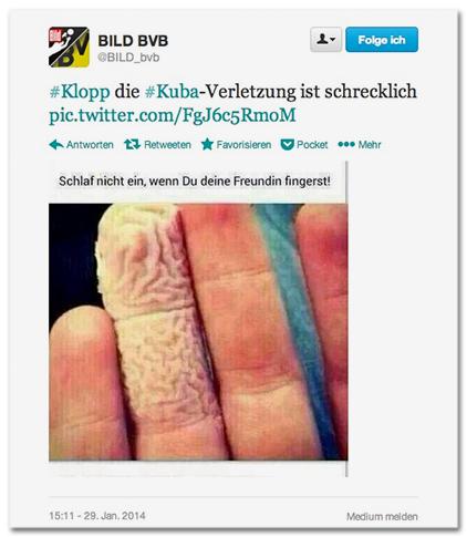 #Klopp die #Kuba-Verletzung ist schrecklich - [Auf dem Foto ist eine Hand zu sehen; ein Finger ist vor Feuchtigkeit aufgequollen] Schlaf nicht ein, wenn Du deine Freundin fingerst!